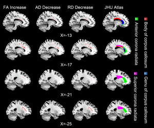 This dynamic pattern of white matter change involving the anterior cingulate cortex, a part of the brain network related to self-regulation, could provide a means for intervention to improve or prevent mental disorders.