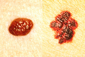 Researchers Testing New Technique for Identifying Cancerous Moles
